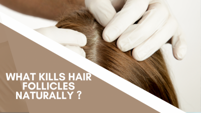 what kills hair follicles naturally