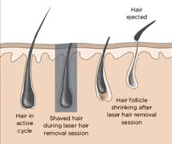 hair follicles hair removal