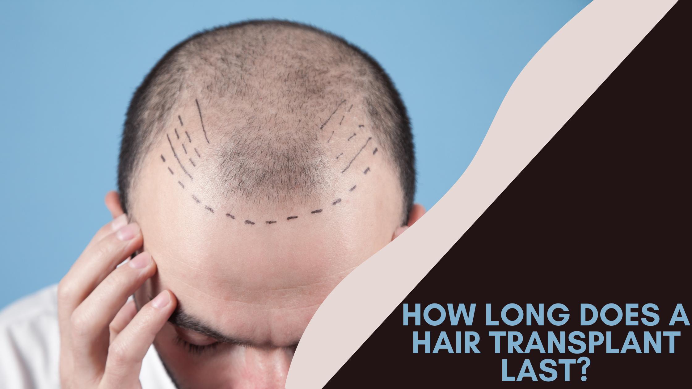 How long does hair transplant last